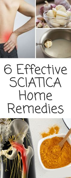 Joint Pain Remedies 6 Effective Home Remedies for Sciatica That You Can Try Sciatica Pain Treatment, Sciatica Pain Relief, Sciatic Pain, Back Pain Relief, Sciatic Nerve, Nerve Pain, Sciatica Exercises, Sciatica Massage, Massage