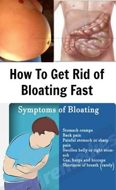 You Are Not Fat! Your Stomach Is Bloated And Here Is How To Get Rid Of It!