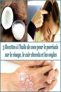 3 Recettes à l'huile de coco pour le psoriasis sur le visage, le cuir chevelu et les ongles