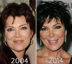 Kris Jenner nosejob before and after photo