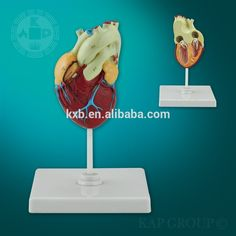 Heart bypass section model plastic human anatomy heart 3d model