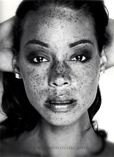 Freckle love