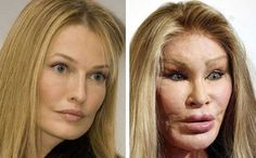 The Jocelyn Wildenstein plastic surgery story is really a sad one. The plastic surgeon did a full facelift, Botox injections, facial fillers, chin / cheek implants, and much more. Botched Plastic Surgery, Bad Plastic Surgeries, Plastic Surgery Gone Wrong, Celebrity Plastic Surgery, Plastic Surgery Fails, Charlotte Flair, Under The Knife, Celebrities Before And After, Operation