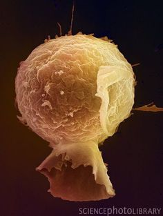 Coloured scanning electron micrograph (SEM) of a lymphocyte white blood cell. Lymphocytes are involved in the immune system's defence mechanisms, lymph system, and involved in antibody production./ Saved from: Science Photo Library. Science Geek, Medical Science, Life Science, Science And Nature, Electron Microscope Images, Scanning Electron Micrograph, Medical Photos, Microscopic Photography, Micro Photography