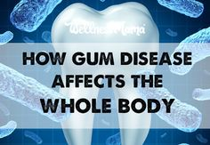 How Gum Disease Affects The Whole Body  Gum disease impacts the whole body and increases the risk of heart disease, diabetes & cancer. Fight it with good immune health and oral health products.