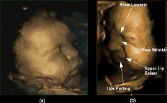 Muecas de dolor en los fetos antes de nacer