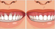 Retração gengival é um problema que atinge até as bocas mais saudáveis. Ela se desenvolve aos poucos e pode ser causada por alguns fatores, além do avanço