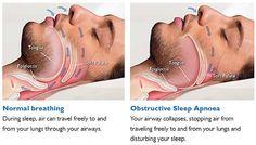 Sleep Apnea and Cardiovascular Diseases