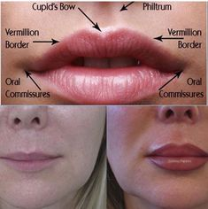 Perfecting your lips is an art. You can expect beautiful natural results from our lip fillers, wrinkle relaxing treatment, and dermal… fillers kiss natural shape women lipstick Dermal Fillers Lips, Botox Fillers, Lip Fillers, Lip Injections, Lip Plumper, Relleno Facial, Facial Anatomy, Facial Aesthetics, Lip Augmentation