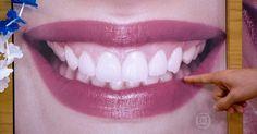 Pessoas com sorriso bonito são mais sociáveis e bem sucedidas