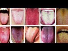 A cor da sua língua pode revelar como esta sua saúde