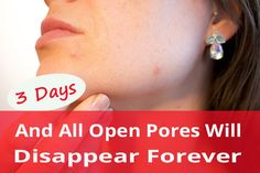 3 Days And All Open Pores Will Disappear From Your Skin Forever We all have millions of skin pores on our skin but they are not visible with naked eye but a Mac Eyeshadow, Mac Lipstick, Tom Ford Makeup, Lip Pencil, Korean Skincare, Getting Old, Your Skin, Maybelline, Sephora