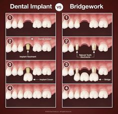 Dental Implant vs. Bridgework