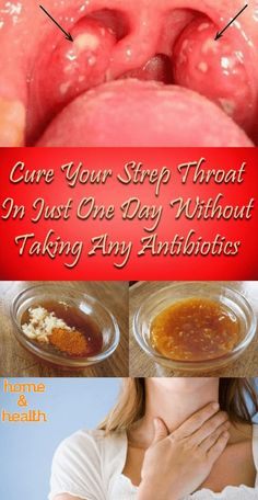 Dealing with Streptococcus pyogenes bacteria can be super tricky, and most people end up with severe complications. cure your strep throat in just one day without antibiotics. Home Health, Health Tips, Health And Wellness, Health Fitness, Natural Health Remedies, Natural Cures, Herbal Remedies, Flu Remedies, Sante Bio