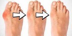 Pourquoi les médecins gardent cette recette simple secrète? Voici comment se débarrasser des oignons aux pieds naturellement!