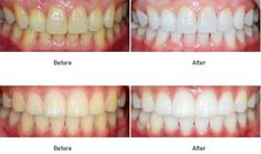 Teeth Whitening 4 You - Get The Results You Want. Naturally
