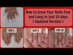 How to Grow your nails really fast and long in just 10 days ( Updated Version ) Make Nails Grow, Grow Long Nails, Grow Nails Faster, Nail Growth, Strong Nails, Oily Hair, Healthy Nails, Grow Hair, Nail Tips