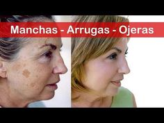 Watch This Video Mind Blowing Foods That Destroy Your Hormones and Skin Ideas. Unbelievable Foods That Destroy Your Hormones and Skin Ideas. Acne Skin, Tips Belleza, Natural Cosmetics, Face Care, Good Skin, Healthy Skin, Skin Care Tips, Beauty Hacks, Beauty Tricks