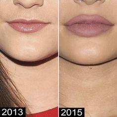 El antes y El después de Kylie Jenner, su cirujano revela qué se ha operado la modelo. Con tan solo 18 años, Kylie Jenner ya ...