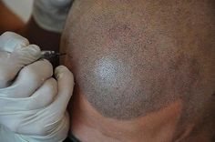 Scalp Micropigmentation on the rise as hair loss solution