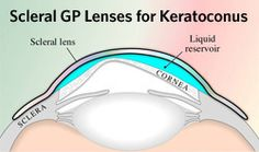 Large-diameter scleral and semi-scleral GP lenses rest on the sclera and vault over the misshapen cornea in keratoconus.