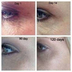 Holy cow! Great results with nerium! Check out my page for info on getting started on ur own results! www.younglooks.nerium.com