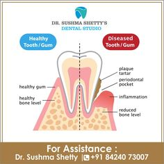 We Always Make Sure to Keep you on the Better Side. Visit Dr Sushma Shetty's Dental Studio for Best Dental Solutions Call : 84240 73007 Vakola, Santacruz Gum Inflammation, Life Touch, Best Dentist, Dental Problems, Healthy Teeth, Orthodontics, Dental Care, Clinic, Good Things