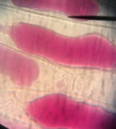 observing plasmolysis in onion cells allium Plasmolysis is the shrinking of the cytoplasm away from the cell wall due to the diffusion of water out of the cell into a hypertonic solution a hypertonic solution occurs when there is a higher solute concentration surrounding the cell.