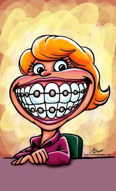 brace face caricature