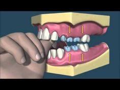 Succion pulgar - Ortodoncia - YouTube
