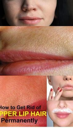 How to get rid of UPPER LIP HAIR FOREVER in a very easy way The small hairs that grow just above the lip can be really embarrassing for all women. In some women, these hairs are darker than in othe… Upper Lip Hair Removal, Underarm Hair Removal, Hair Removal Diy, Hair Removal Methods, Laser Hair Removal, How To Remove Dandruff, How To Remove Ingrown Hair, Anti Aging, Best Hair Removal Products