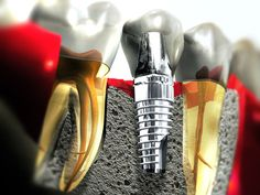 Dental Implants @ http://www.charlburydental.co.uk/dental-implants-oxfordshire.html