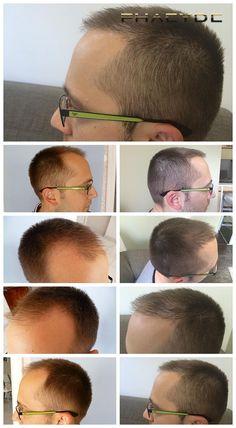 AARON wurde kahl in hhis Tempeln oder Zonen 1 und 2. Er brauchte mehr als 4000 Haare für dieses gute Ergebnis. Hergestellt von PHAEYDE Clinic.  http://de.phaeyde.com/haartransplantation