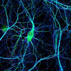 Brain Forest   Connectome: How the Brain's Wiring Makes Us Who We Are