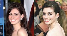 It's still a debate on whether or not Anne Hathaway had a nose job. It certainly looks like she had plastic surgery because the tip of her nose looks different now.