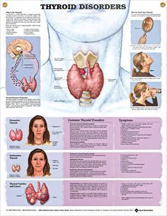Thyroid Disorders anatomy poster illustrates overactive and underactive thyroid gland as it explains its role in the human body. Endocrinology for doctors and nurses. Thyroid Disease, Thyroid Health, Thyroid Gland, Thyroid Issues, Thyroid Symptoms, Thyroid Diet, Thyroid Cancer, Thyroid Problems, Nursing Notes