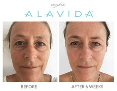Our Members have seen some amazing results since they started using our new #LWAlavida Regenerating Trio. Our skincare line reduces the appearance of fine lines and wrinkles, brightens skin, reduces discoloration, and hydrates 24/7.