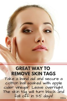 Remove Skin Tags with Apple Cider Vinegar - Take a tiny cotton ball and soak into organic apple cider vinegar. Secure the cotton ball with a band aid and leave overnight. Your should turn black and fall off in days without bleeding or any Organic Skin Care, Natural Skin Care, What Are Skin Tags, Best Airbrush Makeup, Skin Tags Home Remedies, Apple Cider Vinegar For Skin, Skin Tag Removal, Mole Removal, Skin Cream