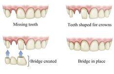Knotty Dental Crown Funny #teethwhiteningbyamanda #DentalCrownPorcelain Dental Implant Surgery, Teeth Implants, Implant Dentistry, Tooth Bridge, Dental Bridge Cost, Teeth Whitening Procedure, Tooth Replacement, Teeth Shape, Root Canal Treatment