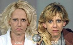 Faces Of Meth Addicts #meth #addicts,mug #shots,drug #mug #shots,methamphetamine #addiction,drug #problems,sheriff #office,faces #of #meth,arrested #people,featured #articles,people #oddity http://puerto-rico.nef2.com/faces-of-meth-addicts-meth-addictsmug-shotsdrug-mug-shotsmethamphetamine-addictiondrug-problemssheriff-officefaces-of-metharrested-peoplefeatured-articlespeople-oddity/  # Posted on 15 March 2011 oddy88 We all know that drugs are bad for you, but how much damage do they really…