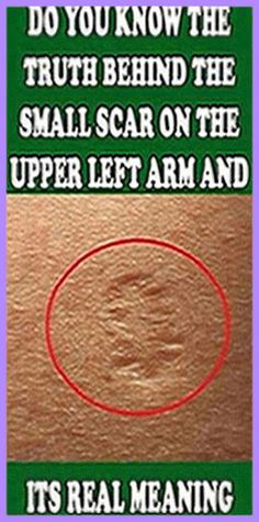 This Is The Truth Behind The Scar Everyone Has On The Upper Left Arm – Health Awareness Media Natural Life, Natural Herbs, Natural Living, Natural Healing, Health Remedies, Herbal Remedies, Natural Remedies, Health And Nutrition, Health And Wellness