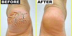 Bicarbonato de sódio é um ingrediente muito especial para a pele e o cabelo.Isso mesmo!