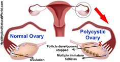 Natural Treatments for Polycystic Ovary Syndrome