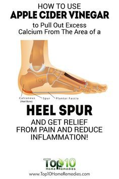 Completely Heal Any Type Of Arthritis - How to Use ACV to Pull Out Excess Calcium From The Area Of A Heel Spur And Get Pain Relief And Reduce Inflammation! Completely Heal Any Type Of Arthritis - Natural Cure For Arthritis, Types Of Arthritis, Natural Cures, Natural Healing, Natural Treatments, Natural Foods, Natural Beauty, Holistic Healing, Arthritis Remedies