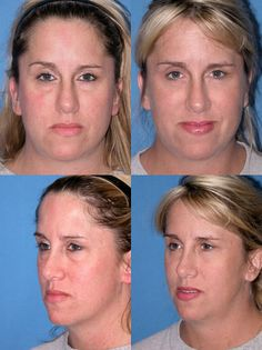 Eyelid Lift (Blepharoplasty) Photo Gallery Click thumbnails for larger images Eyelid Lift, Saint Clair Shores, Liposuction, Plastic Surgery, Photo Galleries, Breast, Shape, Gallery