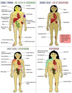 Endocrine Disorders: Hypothyroidism and Addison's disease - NCLEX Quiz Nursing Information, Nursing School Notes, Nursing Schools, Rn School, Pharmacy School, Med School Memes, Medical School, Nursing Mnemonics, Pharmacology Mnemonics