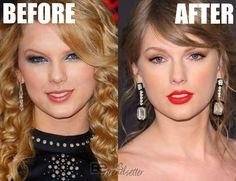 zendaya plastic surgery - Google Search Taylor Swift Teeth, Taylor Alison Swift, Veneers Teeth, Dental Veneers, Dermal Fillers, Lip Fillers, Chin Implant, Nose Contouring, Under The Knife