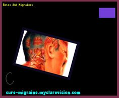 Botox And Migraines 184024 - Cure Migraine