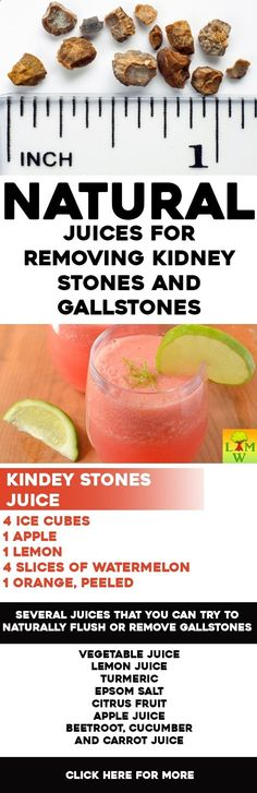 According to studies, one in ten people will have a kidney stone at some point in their lives.