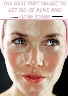 Women's Mag Blog: The best kept secret to get rid of acne and acne scars. It really works! Trust me...